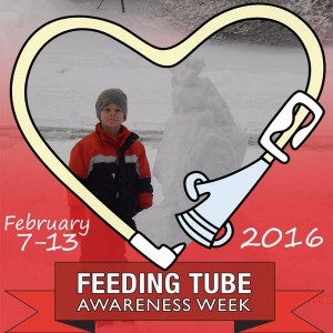 Sam feeding tube awareness